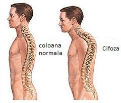 tratamentul artrozei cifozei